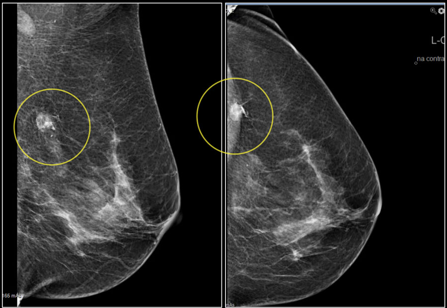 Stage 0 Breast Cancer Should We Do Anything About It